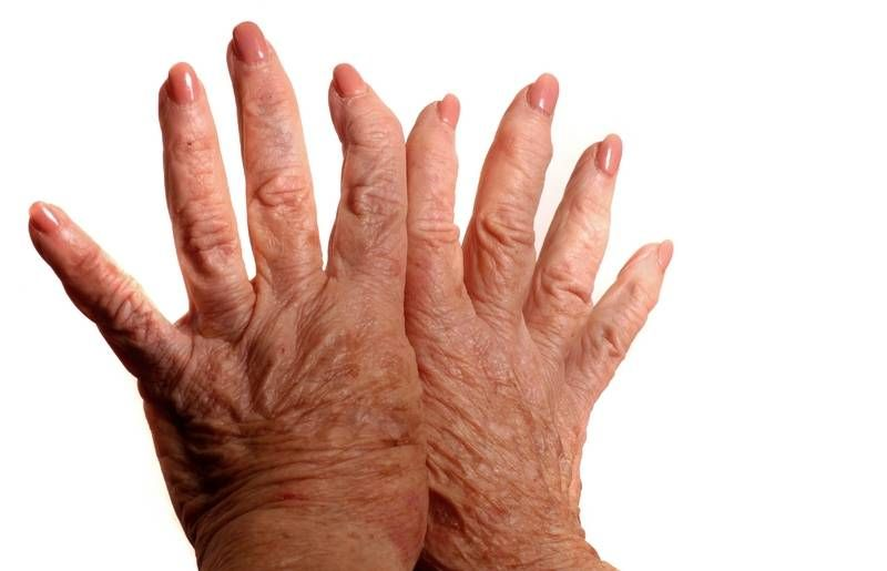 közös kezelés szauna mi gyógyítja az ízületi fájdalmakat