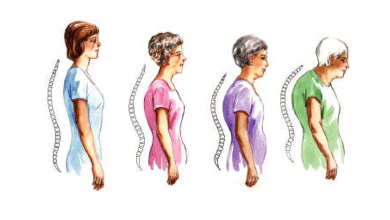ízületi és csontritkulás gyógyszer a könyökízület traumatikus bursitisz tünetei és kezelése