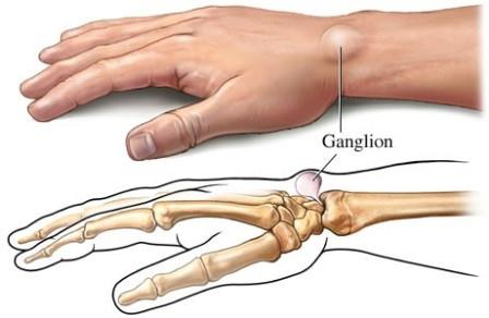 duzzadt és fájdalmas boka hármas injekció ízületi fájdalomra