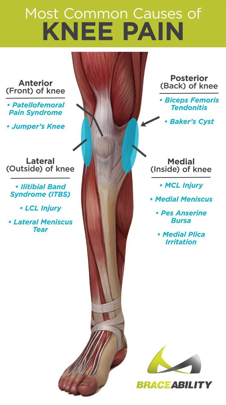 arthrosis kezelés töltéseknél