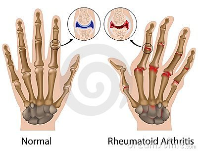 a vállízület injekcióinak artrózisának kezelése nephropathia szisztémás kötőszöveti betegségekben