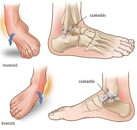 boka és lába fáj