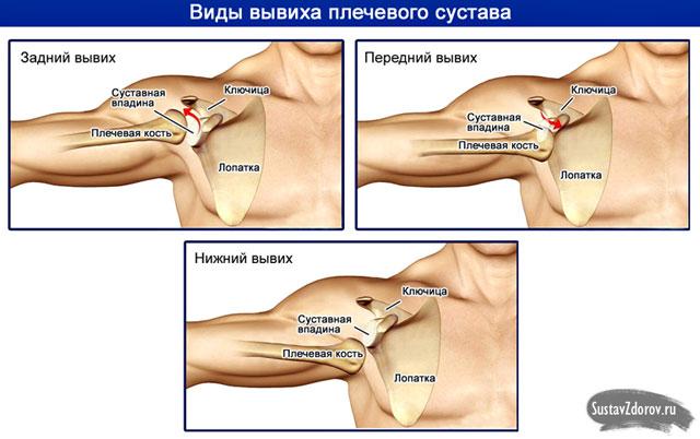 csípő endoprotezis gastritis ízületi fájdalommal