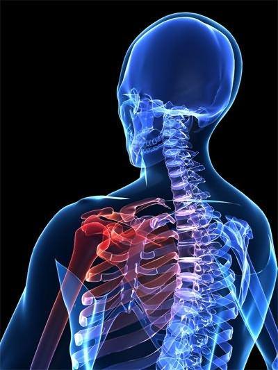 deformáló artrózis a vállízület mi ez a jobb térdízület meniszkuszának károsodása