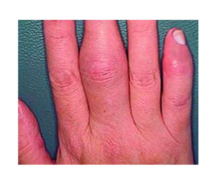 az ujjak ízületeinek ízületi gyulladás tünetei