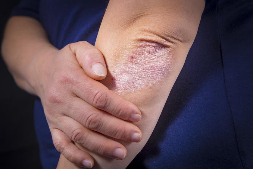 hogyan lehet kezelni a psoriasisos izületi gyulladást