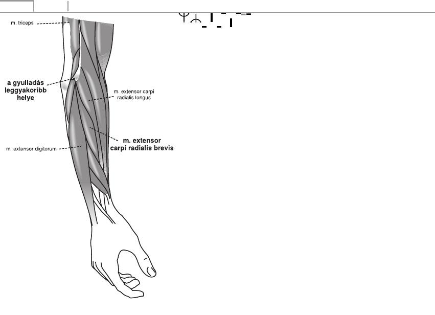 brachialis artrózis klinikai kezelése)