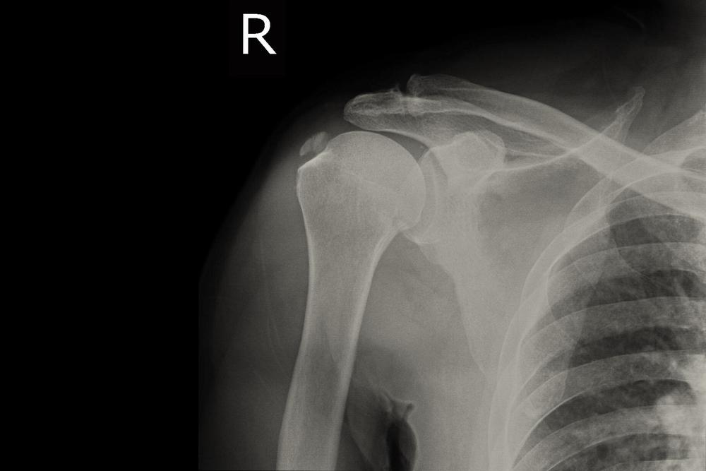 a csuklóízület egy dudorra fáj hátfájás a csípőben