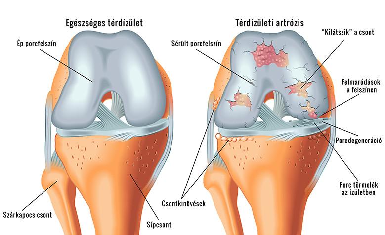 a jobb térdízület fájdalma