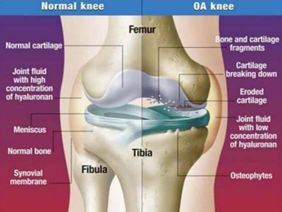 női kezelés a gerinc és az ízületek a láb ízületei fájnak a kocogás után