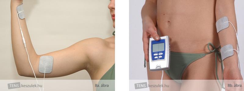 hogyan kell kezelni a csuklóízület osteoarthrosisát ureaplasma és ízületi gyulladások