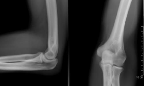 könyökfájás gyermekeknél fájdalom a jobb láb nagy lábujjának ízületében