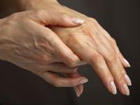 térdízületi gyulladások kezelésére szolgáló gyógyszerek futó csípőfájdalom