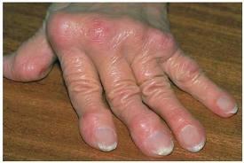 kúpok az ujjak ízületein, hogyan kell kezelni könyökízület gyulladása