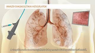 a térdbetegségek osztályozása szeronegatív rheumatoid arthritis