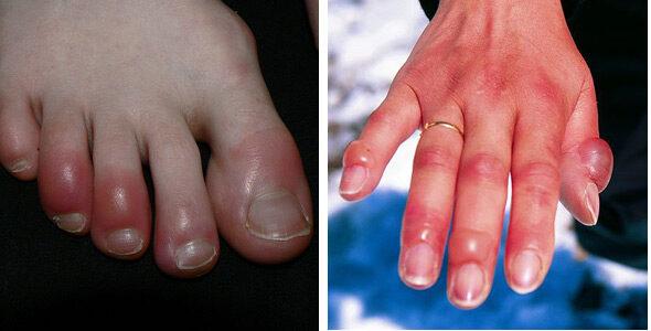 Izomsérülések, húzódások, zúzódások kezelése