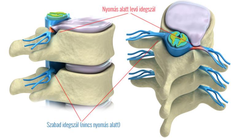 akut csípőfájdalom kezelése vibro masszírozó artrózis kezelésére