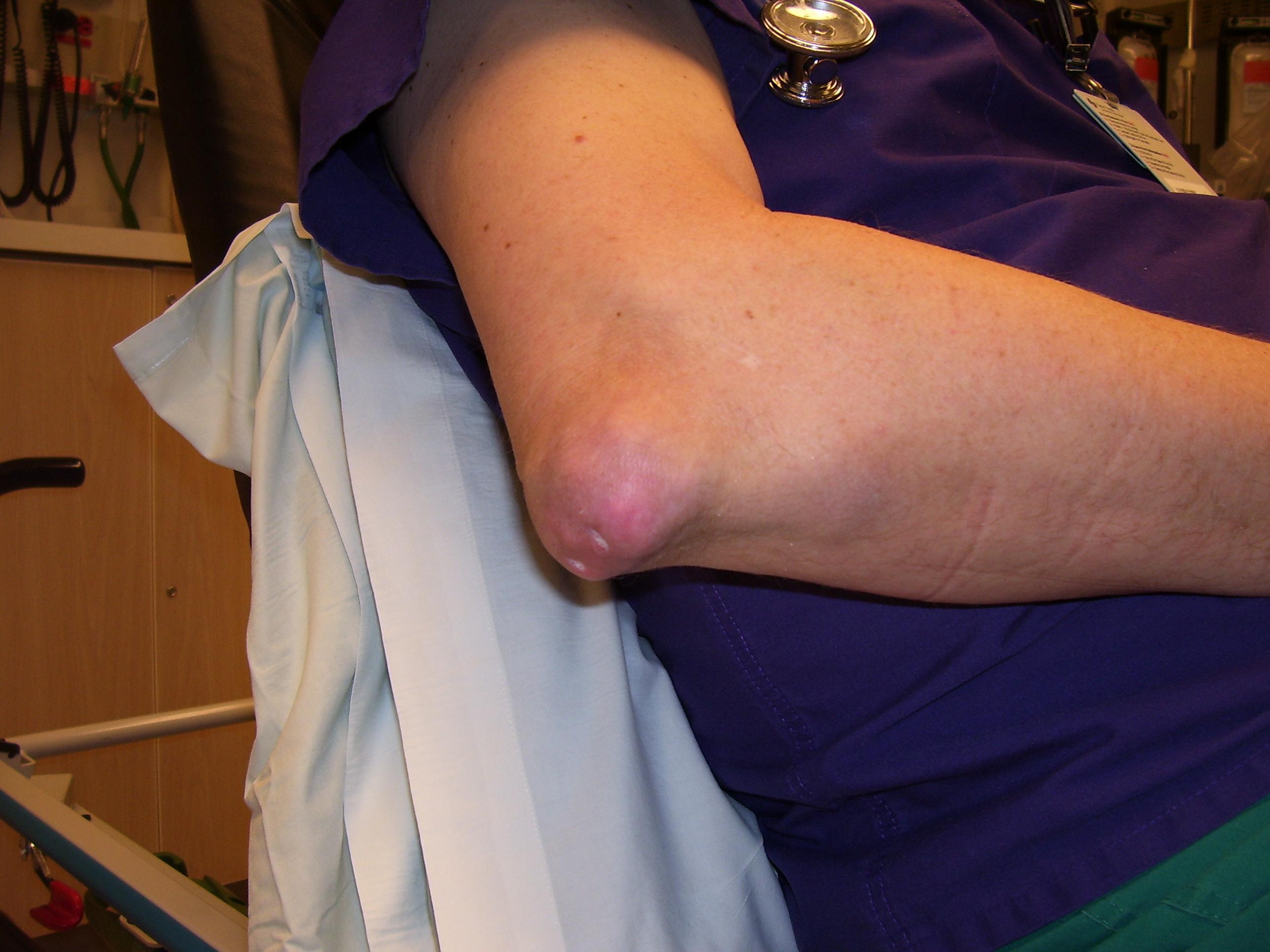 hogyan lehet gyógyítani a csípőízület gyulladását ízületi kenőcs fájdalom