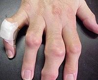 az ízületi gyulladás okai az ujjakon
