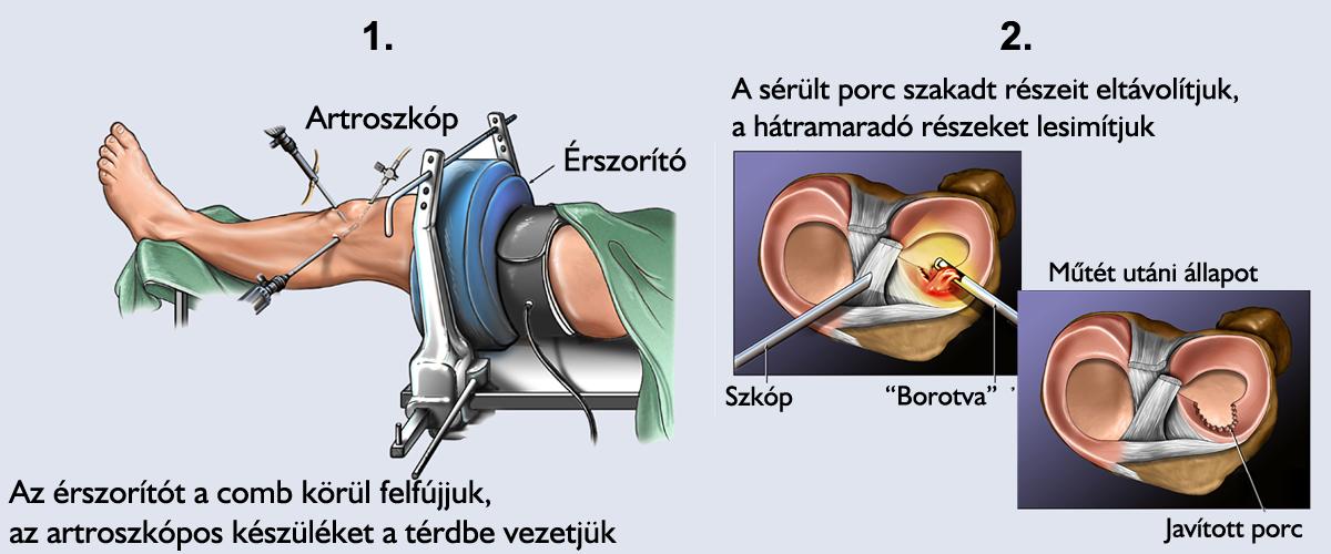 Golyó a bőr közelében a szem közelében - Injekciók July