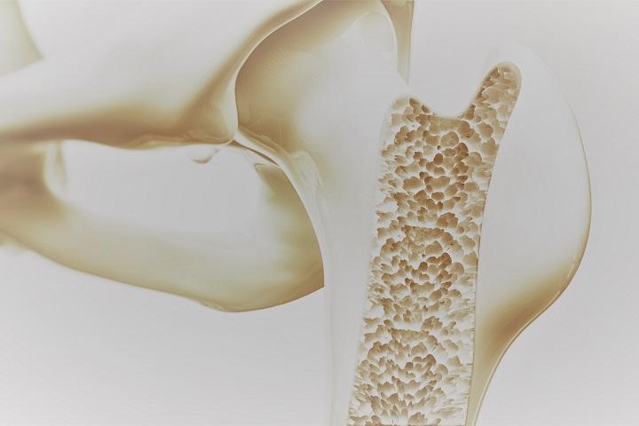 boka artrózis mágneses kezelés térd az ízületből