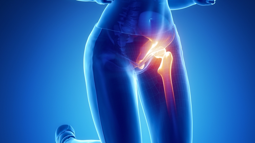 Csípőízületek ízületi gyulladása. kezelés. A csípőízület kopása - Okok és tünetek