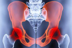deformáló arthrosis coxarthrosis a csípőízület