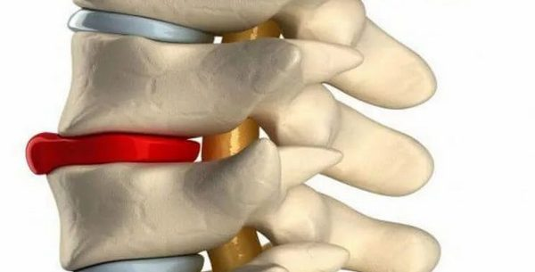 Mi a gerinc szubkondrális szklerózisa - Osteochondrosis -
