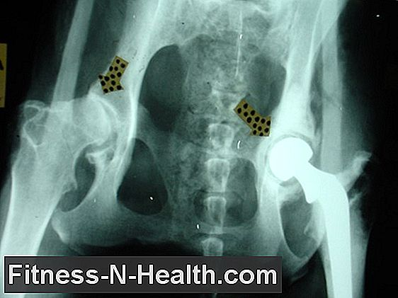 mesterséges szinoviális folyadékkészítmények a csípőízülethez gyermek ízületi fájdalom kenőcs