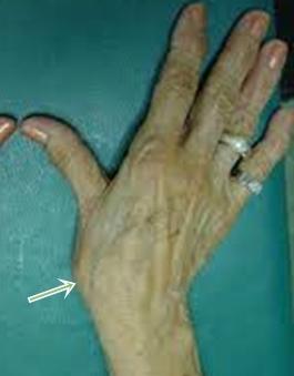 fájó hüvelykujj a kezén az ízületben duzzanat és cianózis az ízület