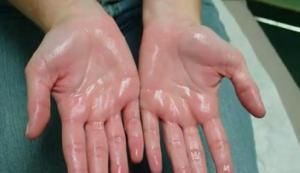 Visszafordítható az ízületi porckopás! | Gyógyszer Nélkül