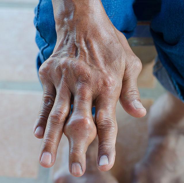 ha a lábak és a karok ízületei duzzadnak