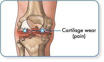 hogyan kell kezelni a csuklóízület osteoarthrosisát miért fáj a jobb csípőízület