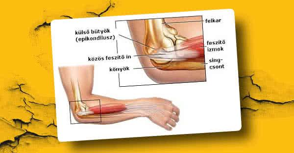 zselatin ízületi fájdalom felírása ízületi fájdalmak receptjei zselatinnal