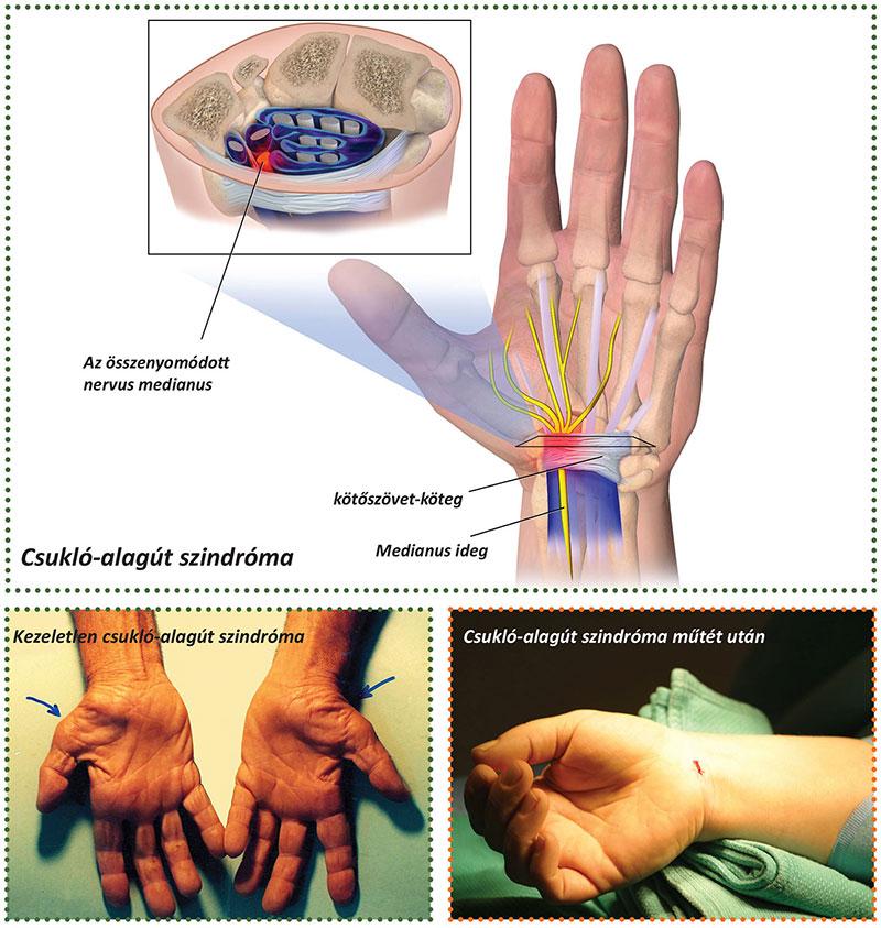 fájdalomcsillapító tabletták ízületi fájdalmak kezelésére az ízületek fájnak a farokcsontból