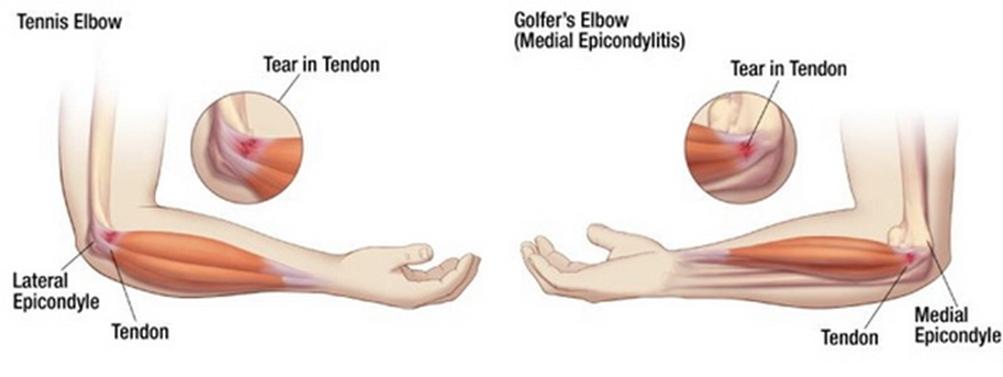 a könyökízület artrózisának kezelése 1 fokkal)
