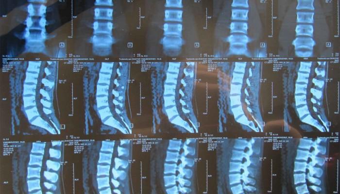térd kiütötte gyógyítható 1 fokos vállízület artrózisban