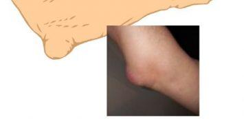 típusú könyök sérülés ízületi gyulladás a csuklóján
