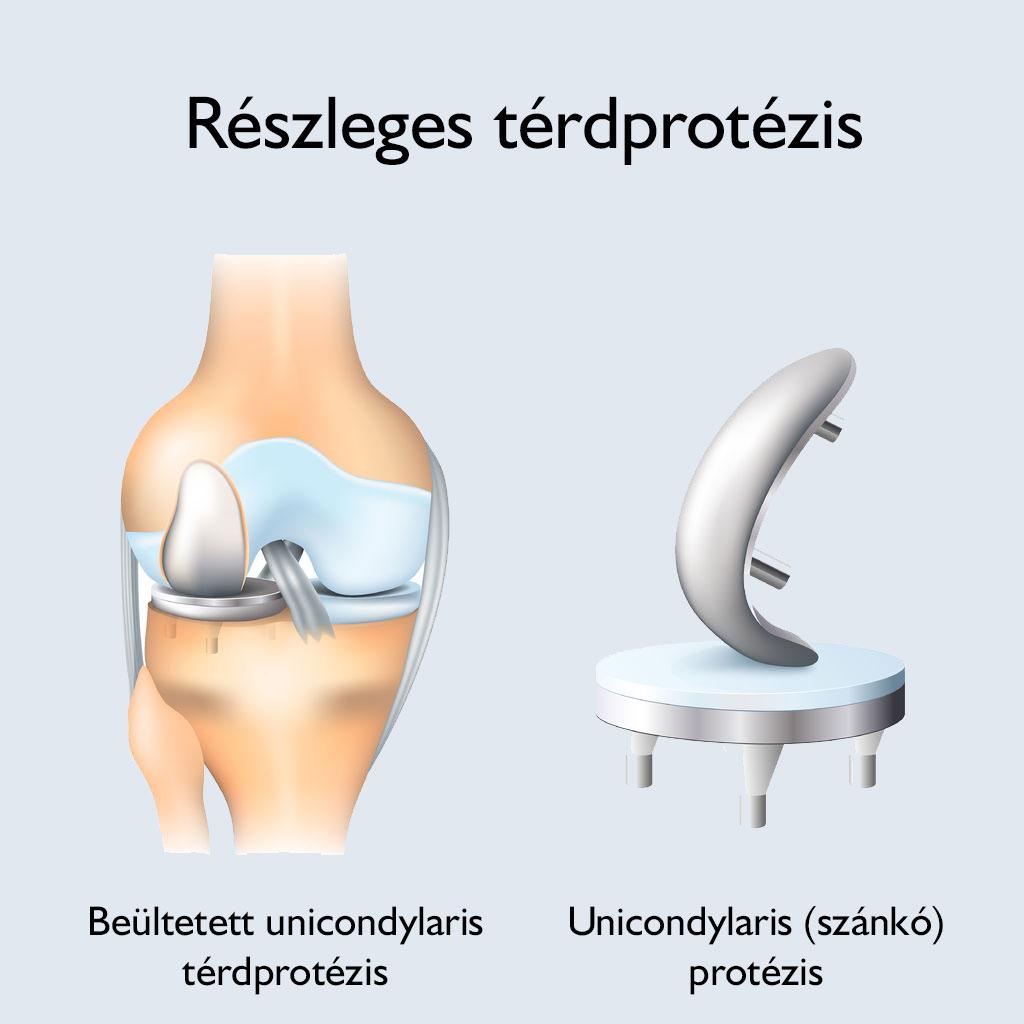 térdízület fájdalomcseréje