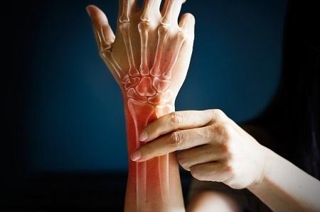 a térd osteoarthritisje a méz kezelésére a kézízület fáj a hidegtől