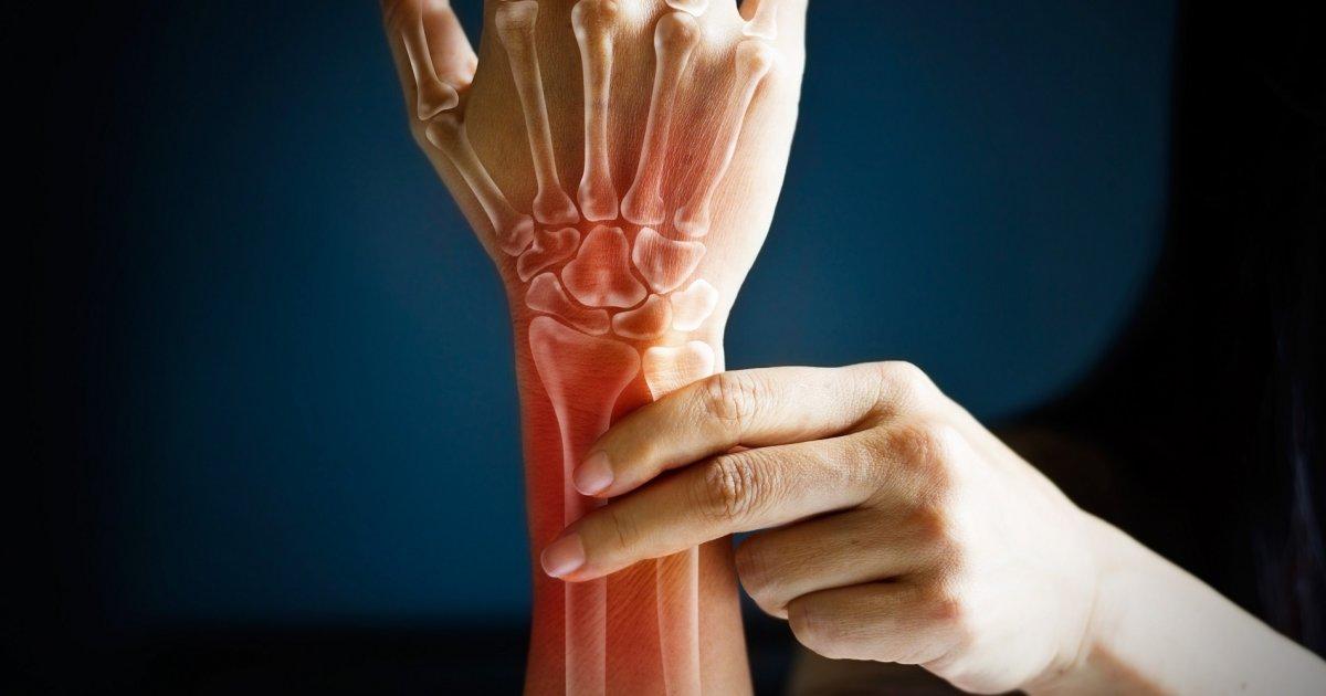 Speciális kéztorna a csuklófájdalmak és ízületi gyulladások ellen