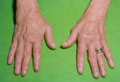 égő fájdalom az ujj ízületében fájdalomcsillapítók a csípőízületek fájdalmaira