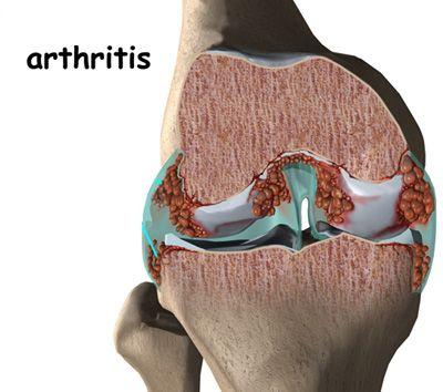 jó gyógyszerek a nyaki osteochondrozisra a könyökízület 2. fokú deformáló artrózisa